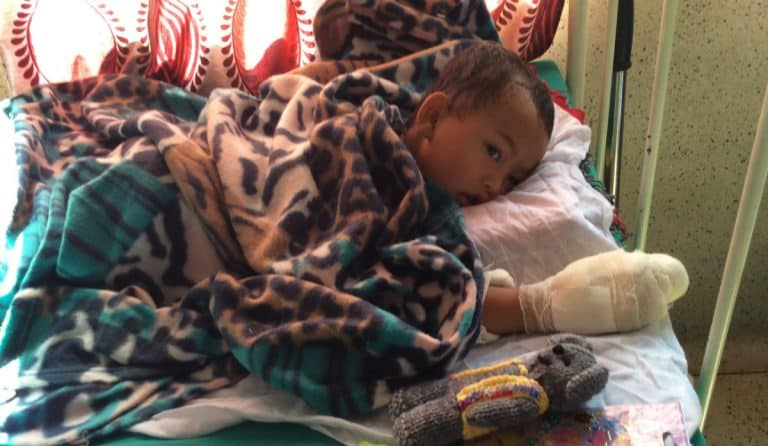 Chance for Nepal Charity - Health in Nepal - Burns